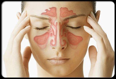 Treat Sinusitis - VisiHow